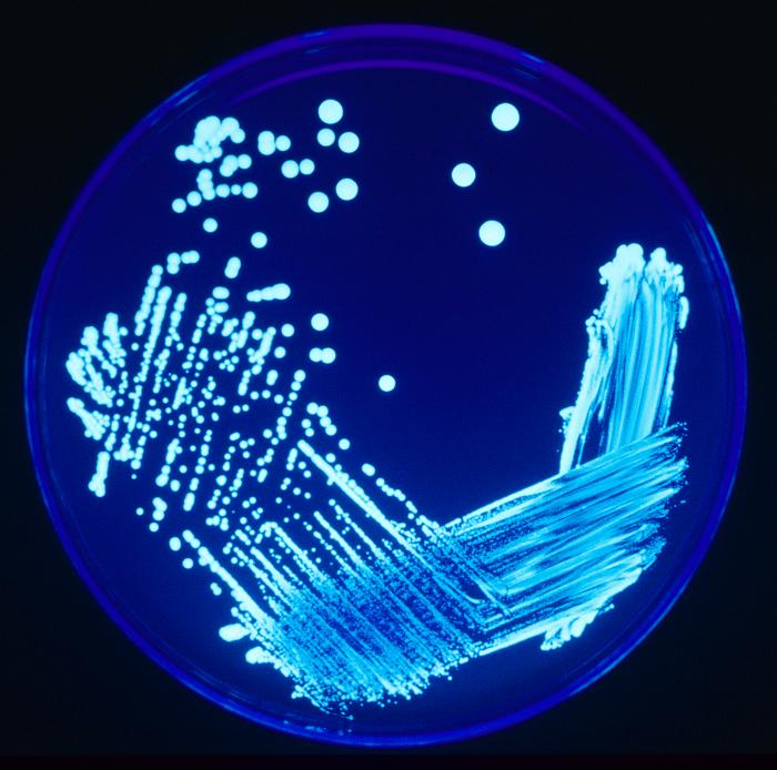 Legionella plate, James Gathany - CDC